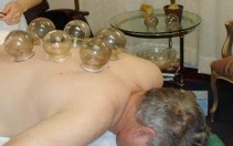 Wei's acupuncture services, Cupping
